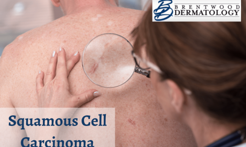 Board-certified Dermatologist At Brentwood Dermatology Taking A Closer Look At What Might Be Squamous Cell Carcinoma On A Patient's Back
