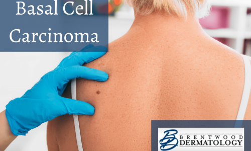 Brentwood Dermatology Dermatologists Examining A Suspicious Mole On A Woman's Back, Which May Be Squamous Cell Carcinoma