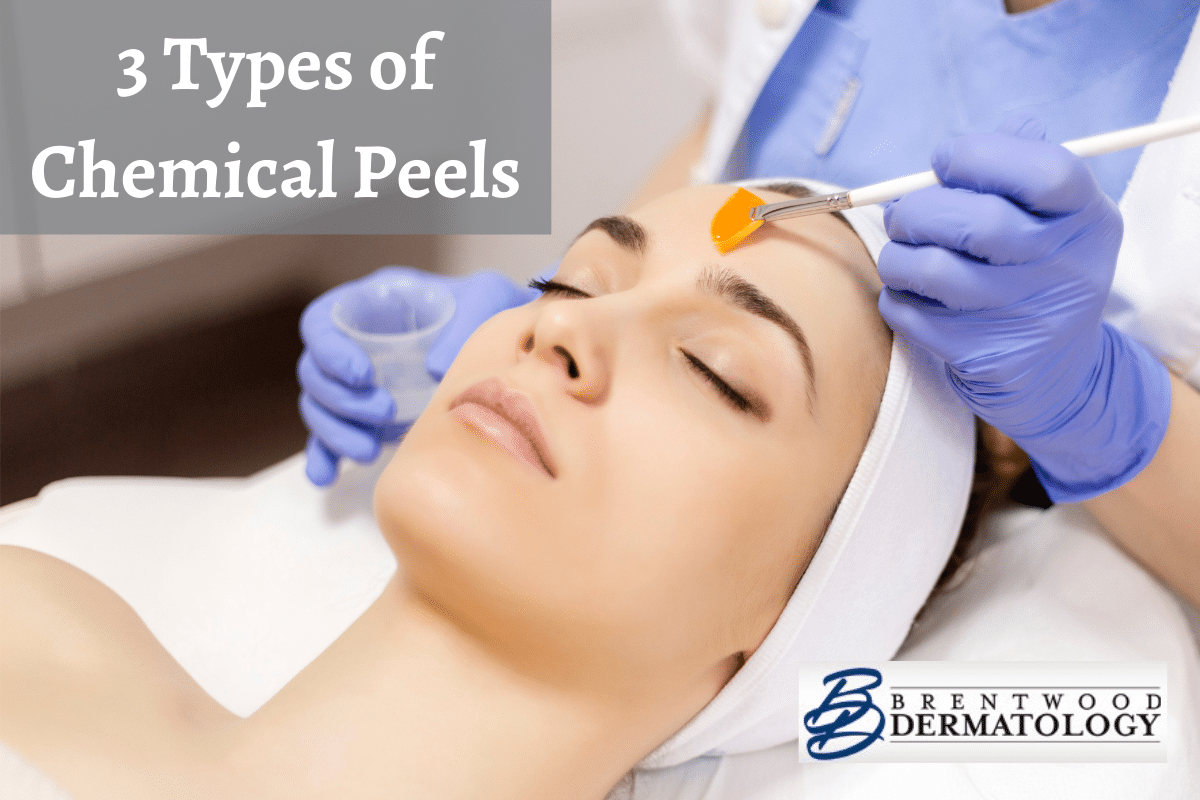 Brentwood Dermatology Board-certified Dermatologist Applying A Type Of Chemical Peel To Female Patient